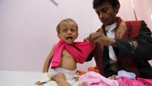 مسؤول أممي يحذر أن  اليمن قادم على حافة المجاعة ويطالب المجتمع الدولي بالتدخل العاجل