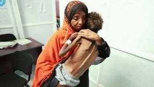 اليمن.. شبح المجاعة يخنق براءة الأطفال