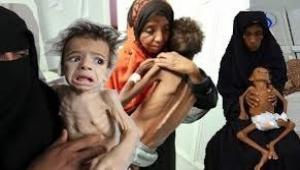 الأمم المتحدة: كل 10 دقائق يموت طفل في اليمن