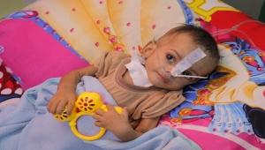 """""""أطباء بلا حدود"""" تعلن معالجة أكثر من 3 ألف طفل يمني يعاني من سوء التغذية"""
