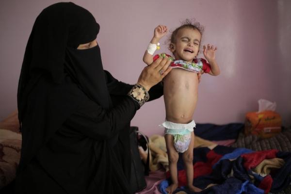 """حذر من إطالة أمد الحرب.. تقرير دولي: 29 مليار دولار تكلفة """"إنسانية"""" لفشل الحرب في اليمن (ترجمة)"""
