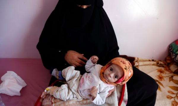 اليمن تتصدر قائمة دول العالم التي تواجه أسوأ الكوارث الإنسانية في عام 2020