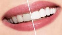 بعيدا عن المنتجات التجارية : طرق سهلة وسريعة للحصول على أسنان ناصعة البياض