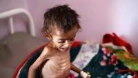تحذير أممي ... المجاعة تهدد 20 مليون يمني
