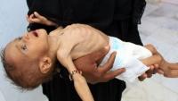 كورونا يفاقم المجاعة وسوء التغذية في اليمن